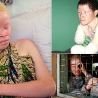Tanzania's albinos hacked apart by witchdoctors | Daily Mail Online